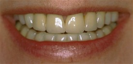 Cosmetic Dentistry | Porelain Crowns Before Treatment