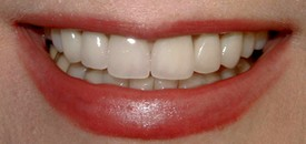 Cosmetic Dentistry | Porcelain Crowns After Treatment