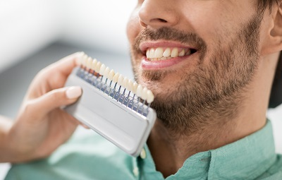 cosmetic dental veneers in escondido
