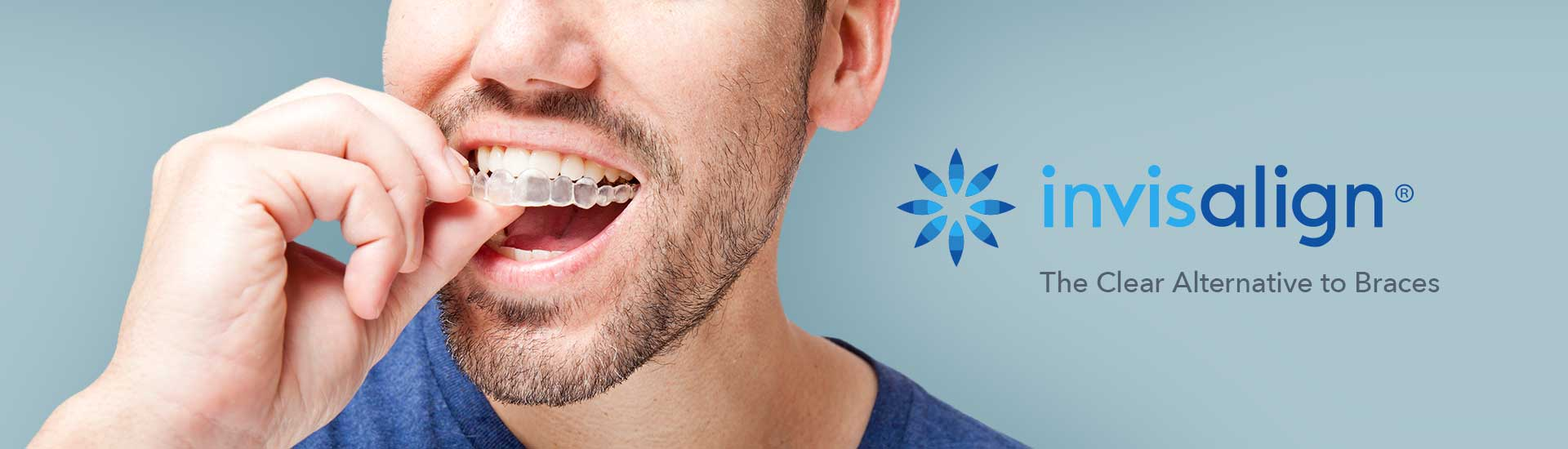 Inivisalign Clear Braces