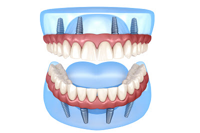 what are all on 4 dental implant dentures
