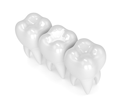 3D rendering of teeth with dental composite filling