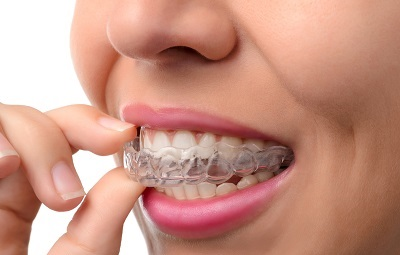 putting on invisalign clear braces