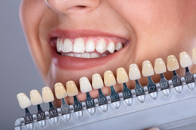 Patient matching teeth color for veneer treatment