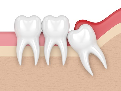 3d render of wisdom tooth impacting other teeth