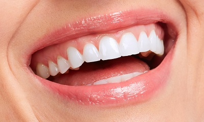 close up of perfect white smile with healthy gums