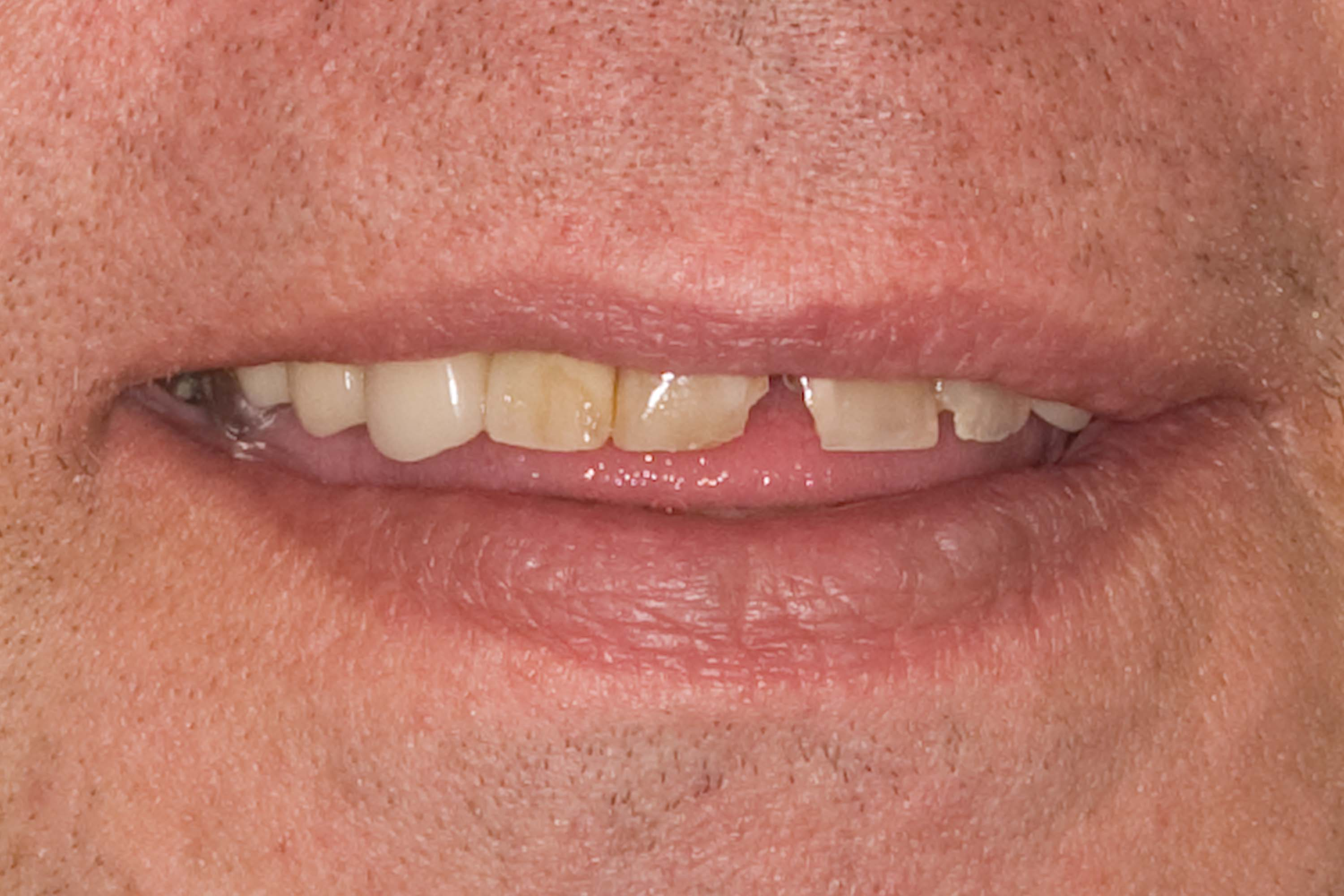 before smile in a day