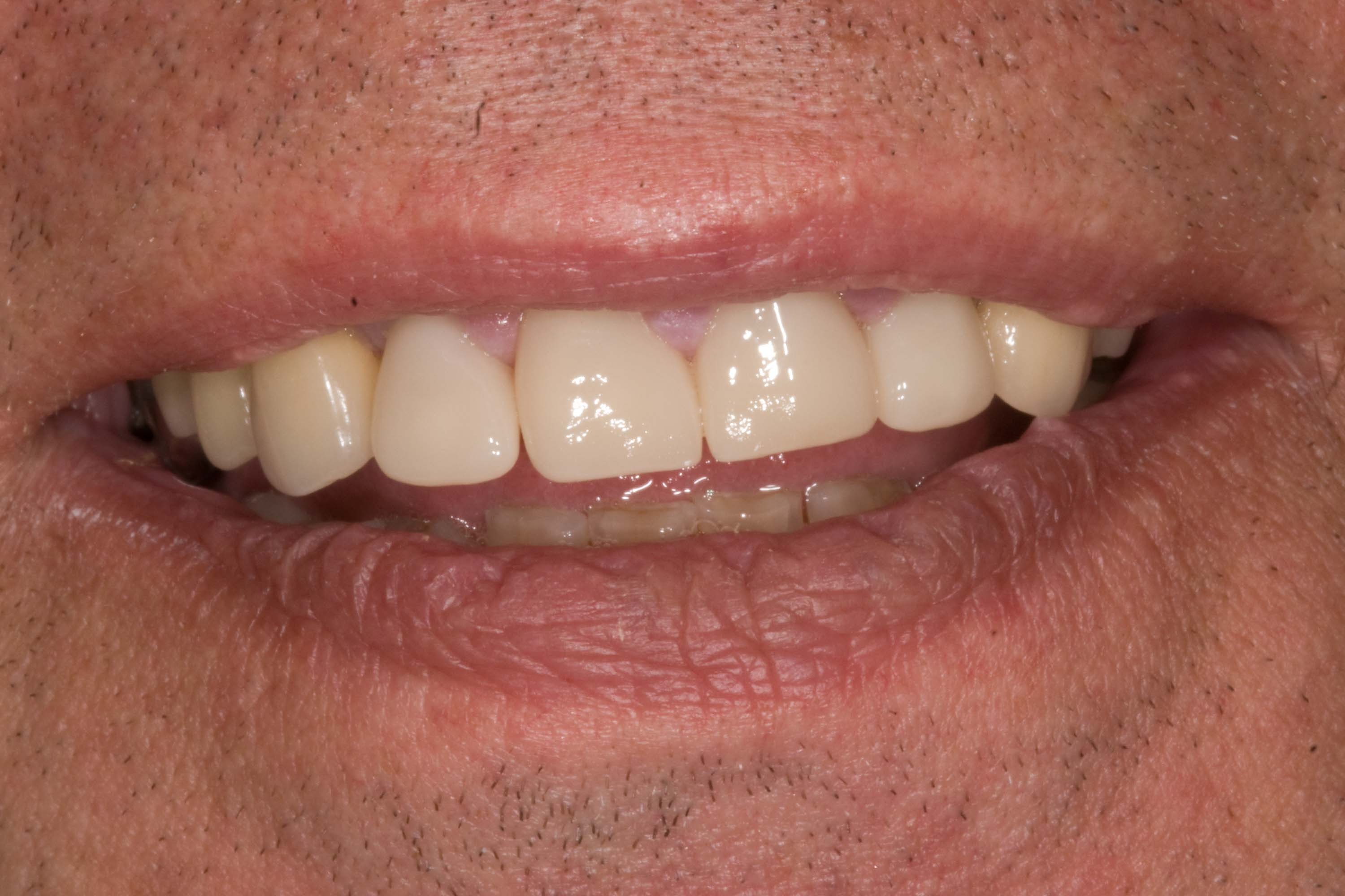 after smile in a day