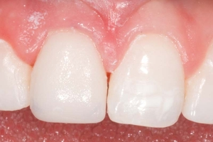 after crown in a day