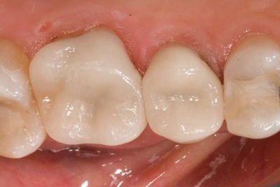 after crown in a day back teeth