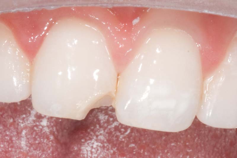 before crown in a day