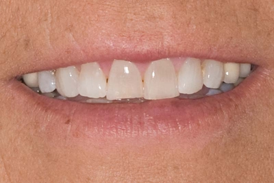 before front 4 teeth