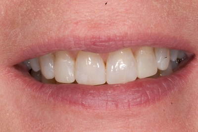 after front 4 teeth