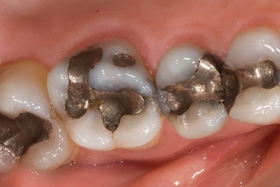 before crown in a day back teeth