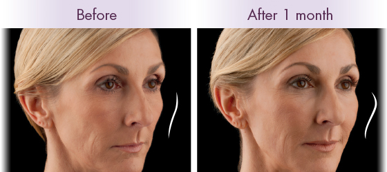 Voluma Newport Beach Before and After 2
