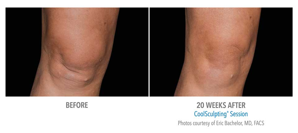 CoolSculpting Above Knee Fat