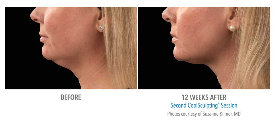 CoolSculpting Double Chin Female - Newport Beach MedSpa