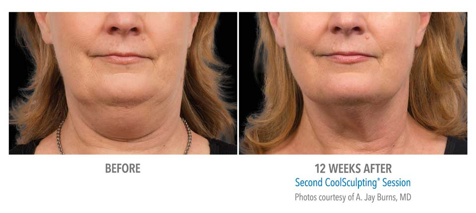 CoolSculpting Double Chin - Newport Beach