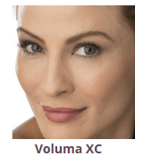 Voluma XC - Newport Beach MedSpa