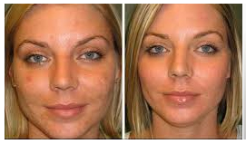 Newport Beach microdermabrasion