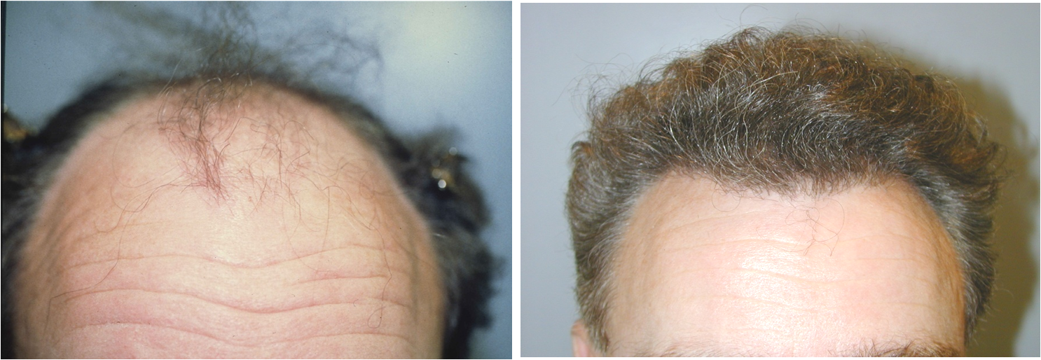 NeoGraft Hair Implants - Hair Restoration Case 4, Newport Beach