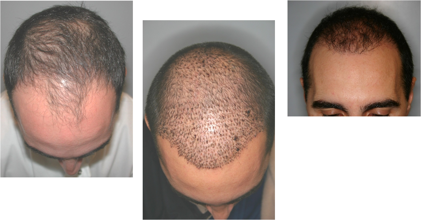 NeoGraft Hair Implants - Hair Restoration Case 1, Newport Beach