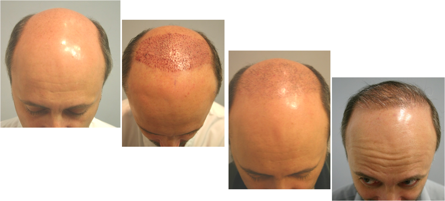 NeoGraft Hair Implants - Hair Restoration Case 3, Newport Beach
