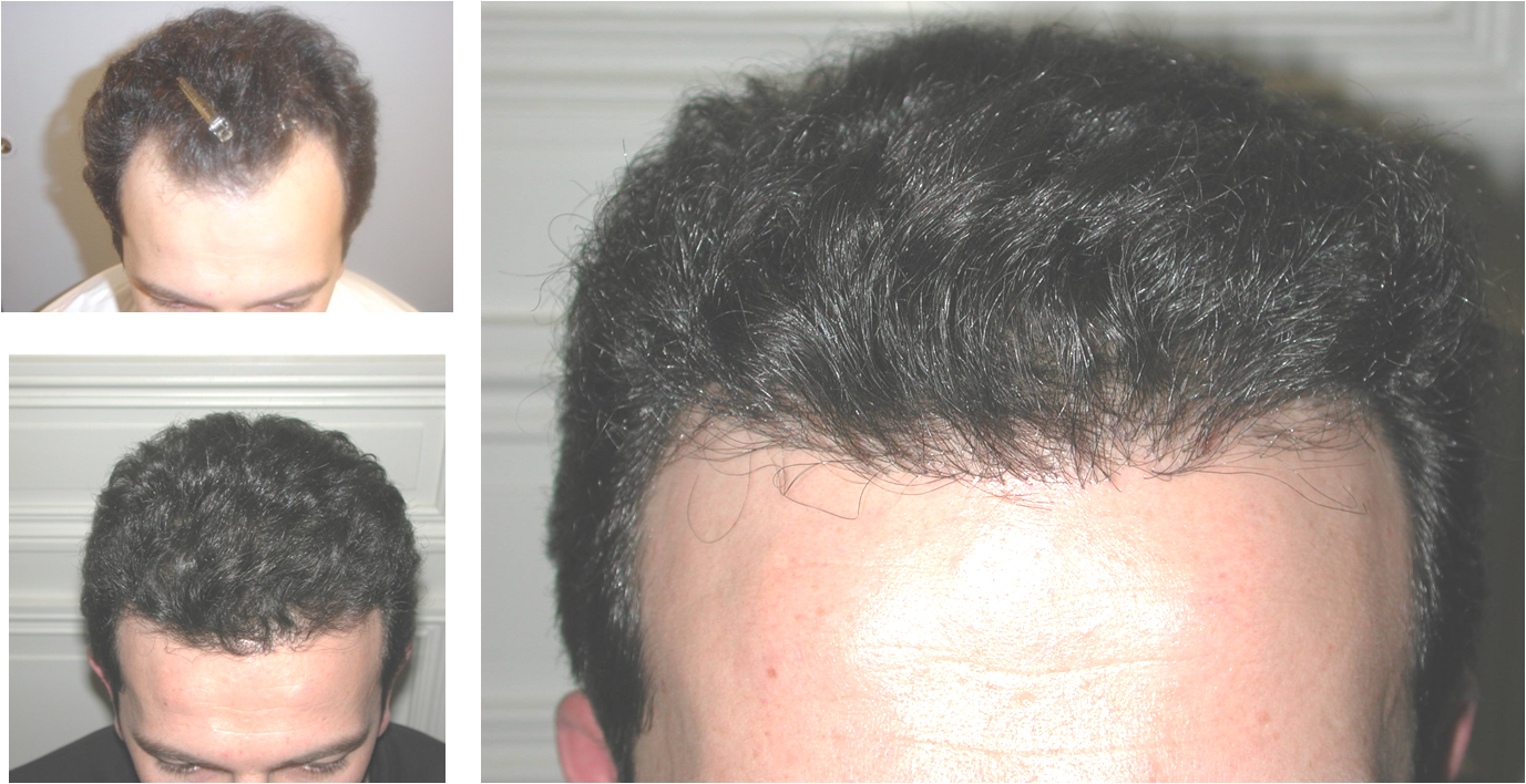 NeoGraft Hair Implants - Hair Restoration Case 2, Newport Beach