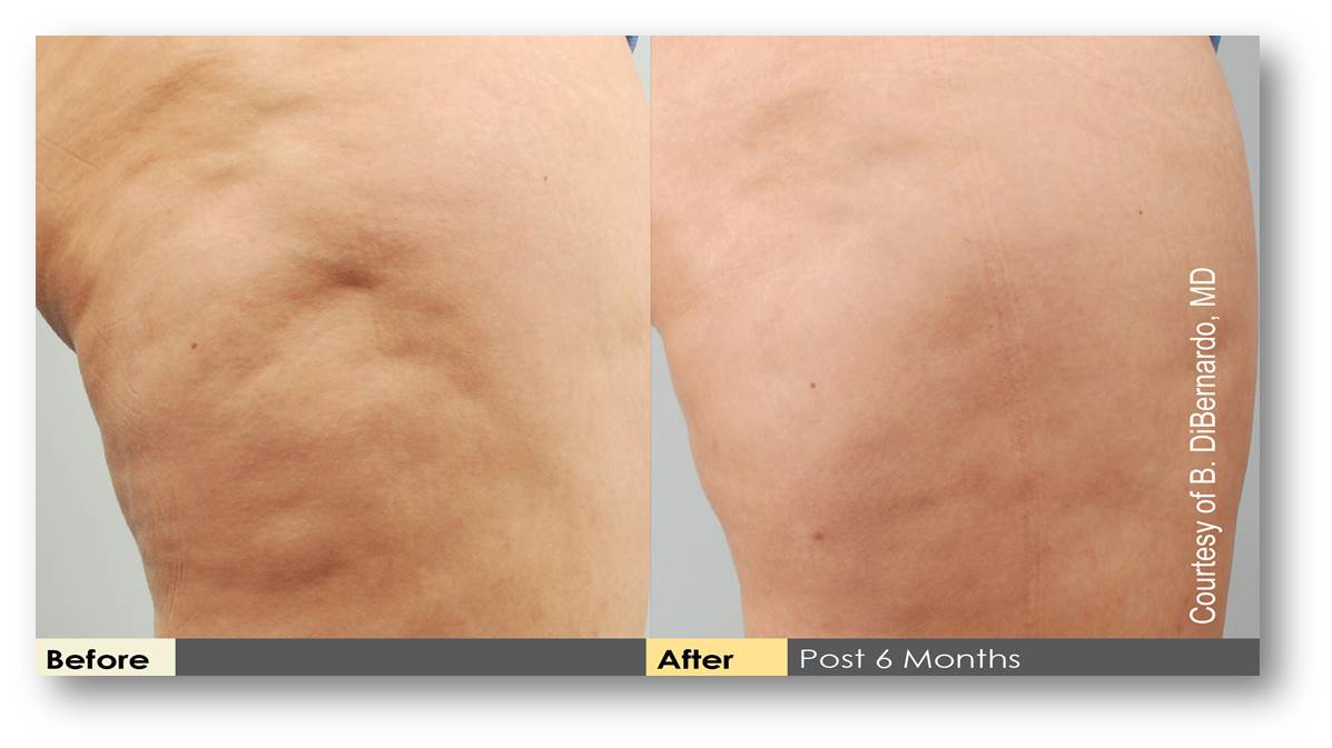 Cellulite Treatment Photos Newport Beach