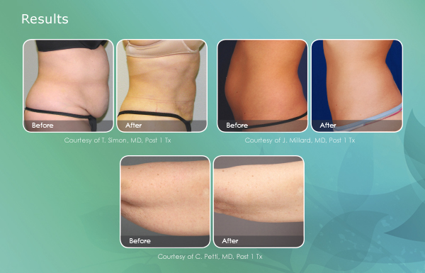 SmartLipo Before and After Newport Beach