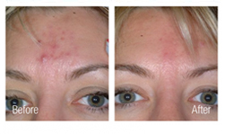 Newport Beach Acne Scar Removal