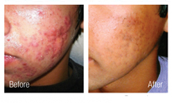 Acne Scar Removal Orange County