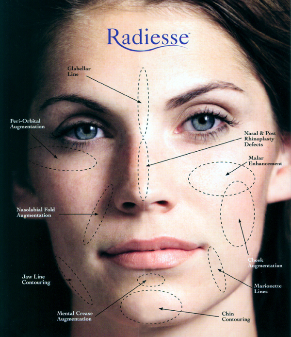 Radiesse for Face