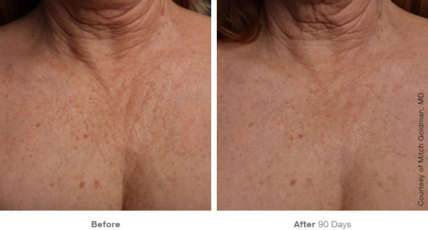Ultherapy Chest Before and After