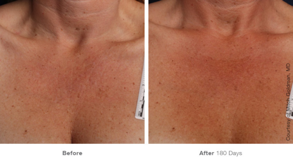 Ultherapy Chest Case 2