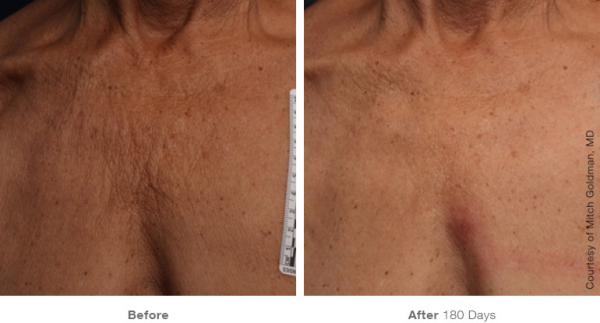 Ultherapy Chest Skin Tightening