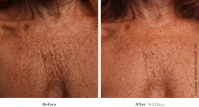 Ultherapy Chest Skin Tightening 2