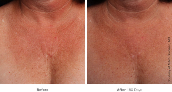 Ultherapy for Chest Before and After