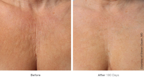 Ultherapy Skin Rejuvenation Chest Before and After
