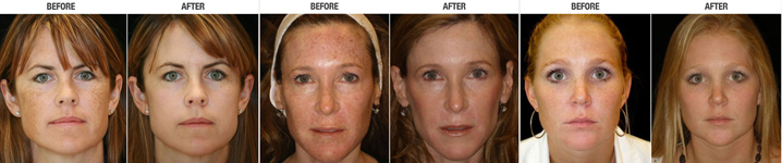 IPL Photofacial Before and After | Newport Beach, CA