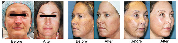 Matrix Factional Rejuvenation Newport Beach MedSpa