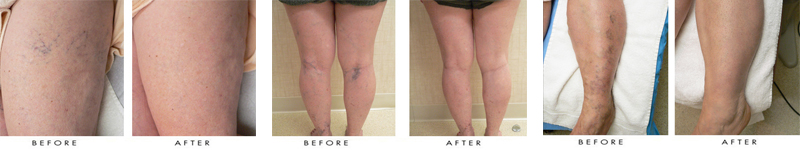 Laser Vein Treatment by Newport Beach MedSpa in Orange County
