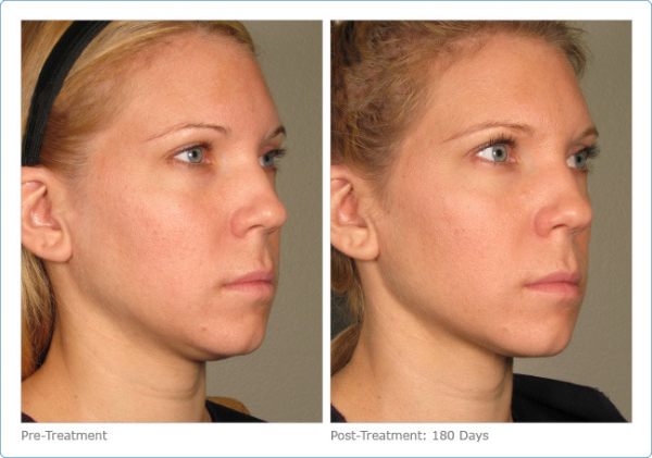 Facelift with Ultherapy, Newport Beach