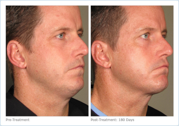 Neck Tightening Ultherapy