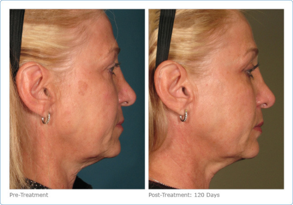 Ultherapy Facelift