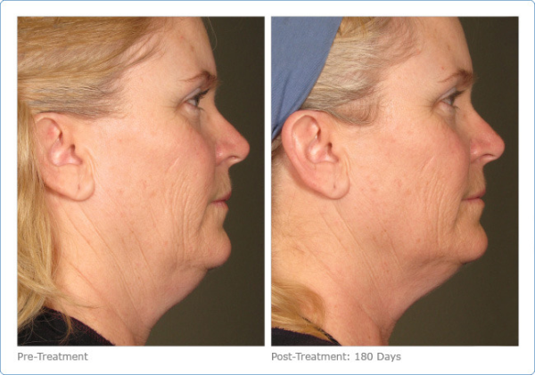 Ultherapy Double Chin, Newport Beach