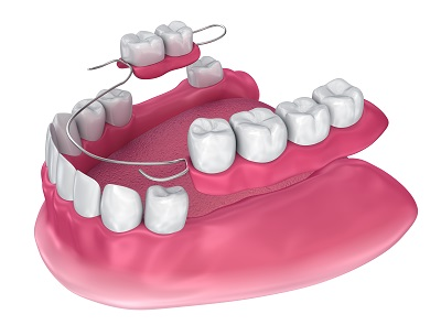 3D render of partial dentures