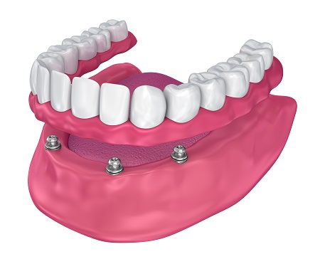 3D render of implant supported full dentures