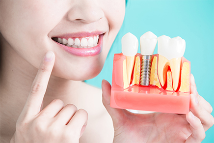 affordable dental implants in laguna hills