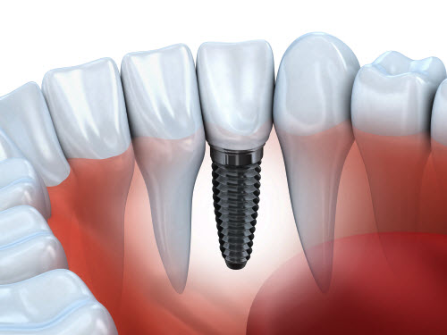 Graphic showing dental implant placed in gum